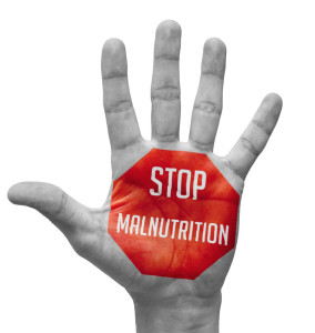 000532 0049 000030 284x300 Stop Malnutrition Concept on Open Hand.